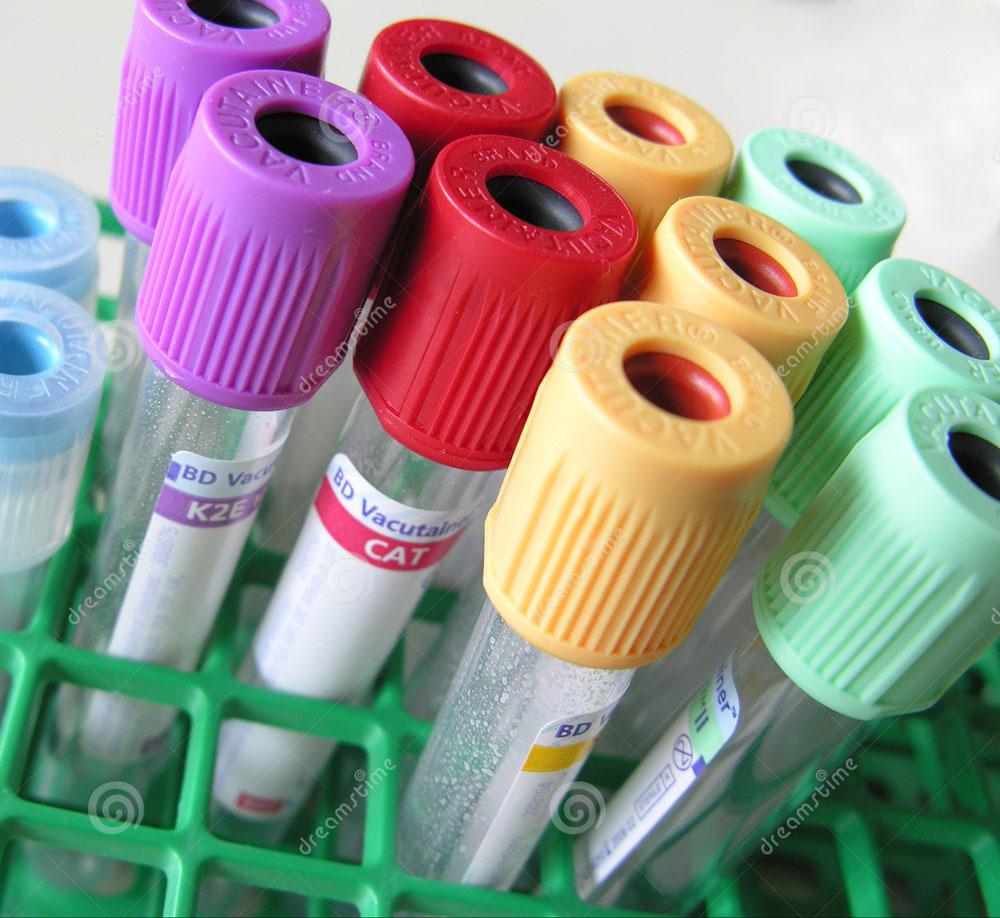 blood-tubes-74258